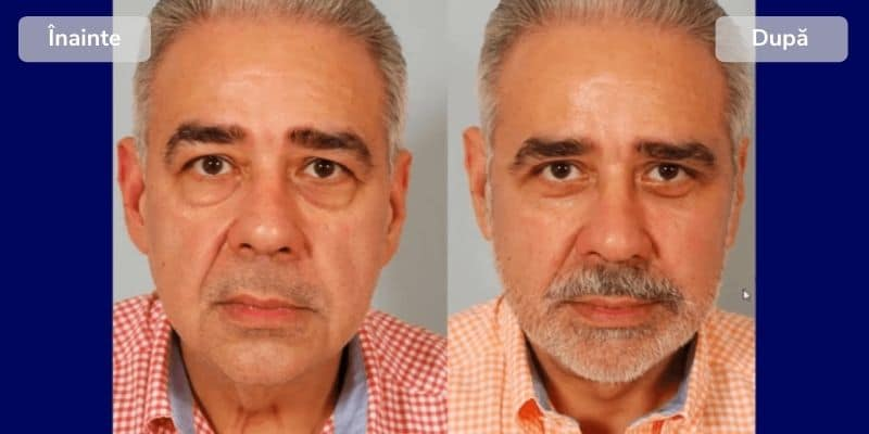 Before after listing facial