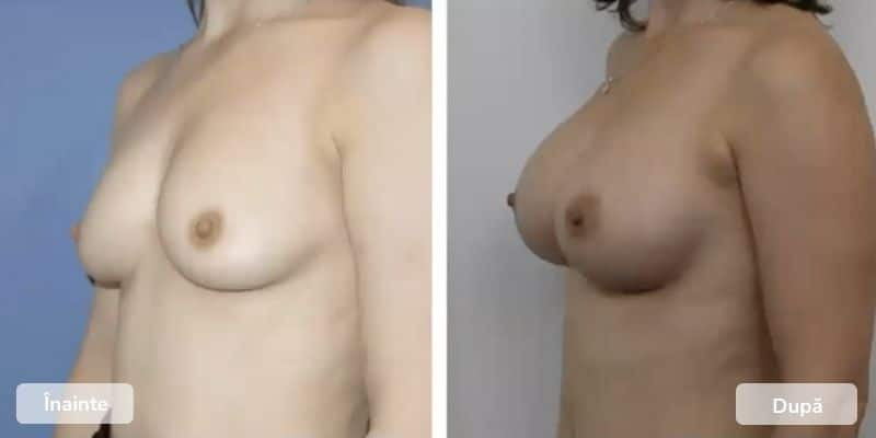 Before after Implanturi mamare