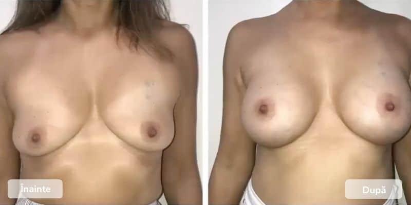 Inainte Dupa Implanturi mamare